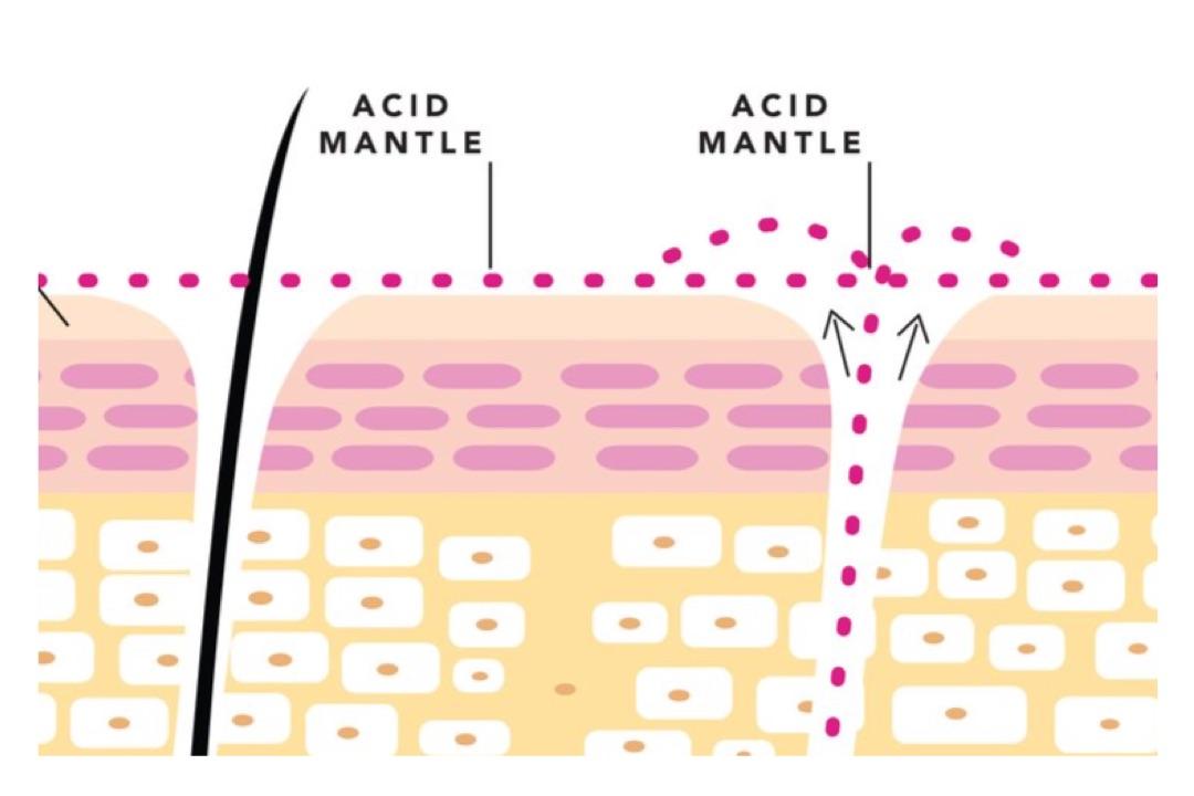 The Acid Mantle