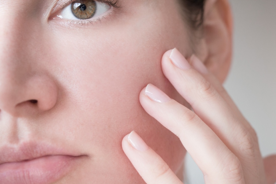 Is your skin affected by redness ?