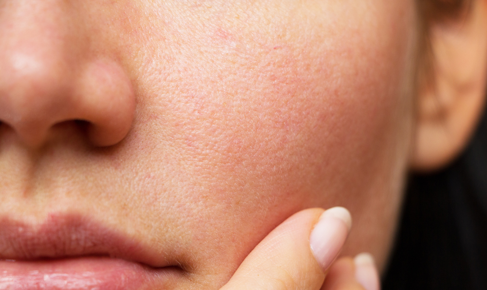How to reduce open pores