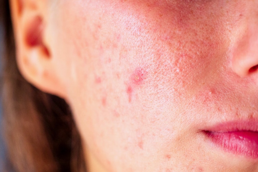 Acne isn't just for Teens