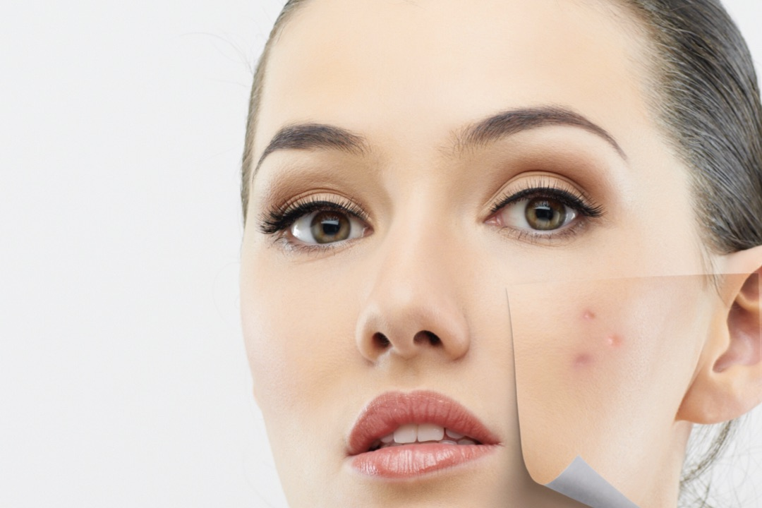 Acne promises may lead to more problems