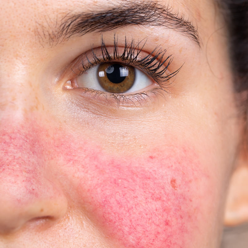 Results with Rosacea