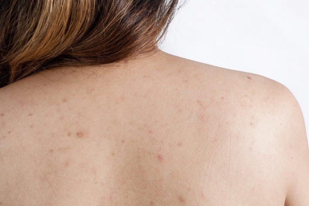 Backne or Body Acne?