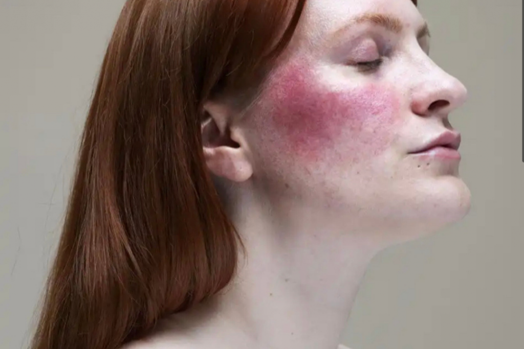 5 Interesting Facts about Rosacea